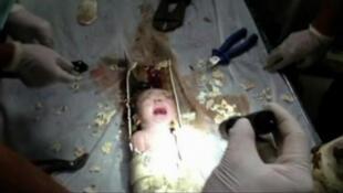 O bebê encontrado no encanamento na China voltou para a casa com a mãe