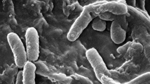A Pseudomonas aeruginosa é uma bactéria Gram-negativa extremamente versátil, que pode ser encontrada em diversos ambientes.