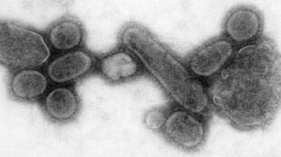 Virus thuộc chủng H1N1, nguồn gốc đại dịch cúm Tây Ban Nha