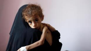 Mulher iemenita segura seu filho subnutrido no centro de tratamento do hospital al-Sabeen, em Sanaa, no Iêmen, em 6 de outubro de 2018.