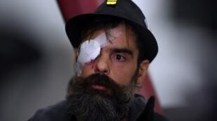 """Jerome Rodrigues, uma das figuras do movimento """"coletes amarelos"""", durante uma coletiva de imprensa no hospital Cochin em Paris, em 27 de janeiro de 2019."""