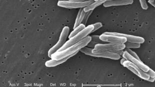 Imagen de una mycobacterium tuberculosis