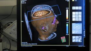 گروهی از پژوهشگران فرانسوی از سال ۲۰۱۱ میلادی نحوه عمل مغز افراد پدوفیل را مطالعه و بررسی می کنند.