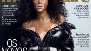 A modelo canadense Winnie Harlow foi capa da revista Marie Claire no Brasil neste mês de setembro.