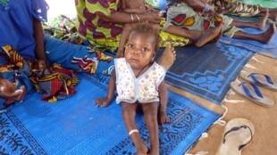 Un enfant souffrant de malnutrition et de malaria attendant un traitement à Guidan-Roumdji le 18 avril 2010