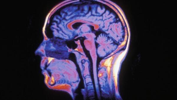Imagem do cérebro obtida através de ressonância magnética