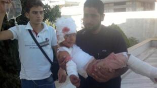 Criança ferida em bombardeio em Hula, perto de Homs, volta para casa depois de receber atendimento em hospital.