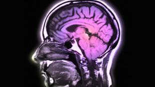 Ce détecteur de pression intracrânienne se dissout presque «naturellement» dans le liquide cérébrospinal du receveur en quatre à cinq semaines