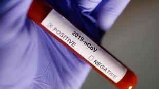 Ảnh minh họa: Ống xét nghiệm virus corona