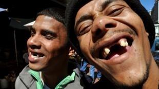Dans les townships de la ville du Cap, il est courant de croiser des habitants avec un trou à la place des dents de devant.