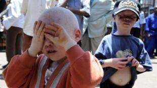 Em África o albinismo é frequente e problemático.