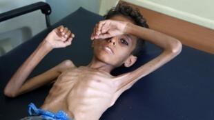 پس از گذشت چهار سال از مداخله نظامی ائتلاف عرب در یمن، قحطی، خشونت و شیوع بیماریهای واگیردار بیداد می کند.