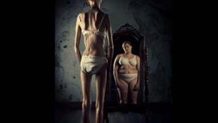 A anorexia nervosa é predominante entre mulheres, de 13 a 25 anos de idade, em média.