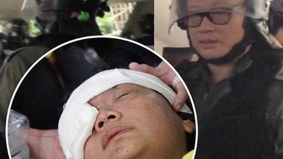 一名印尼女记者去年9月采访香港街头示威活动被警方射盲右眼,目前正寻求民事诉讼要求赔偿。此案据称与郑丽琼被捕有关。