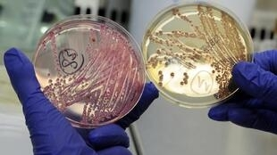 petri dishes with bacterial strains of EHEC bacteria (bacterium Escherichia coli in Hamburg