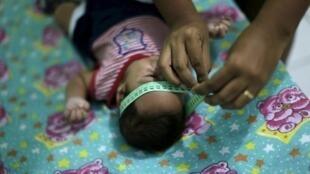 Germana Soares, moradora de Ipojuca, em Pernambuco, mede a cabeça de seu bebê de dois meses, Guilherme Soares Amorim, que nasceu com microcefalia.