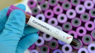 Test pour détecter le coronavirus.
