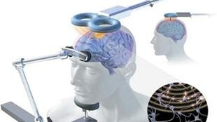 Peut-on manipuler notre cerveau ?
