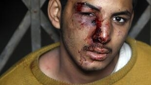 An injured pro-Mubarak supporter is detained by anti-government demonstators