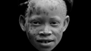 Albinos em África