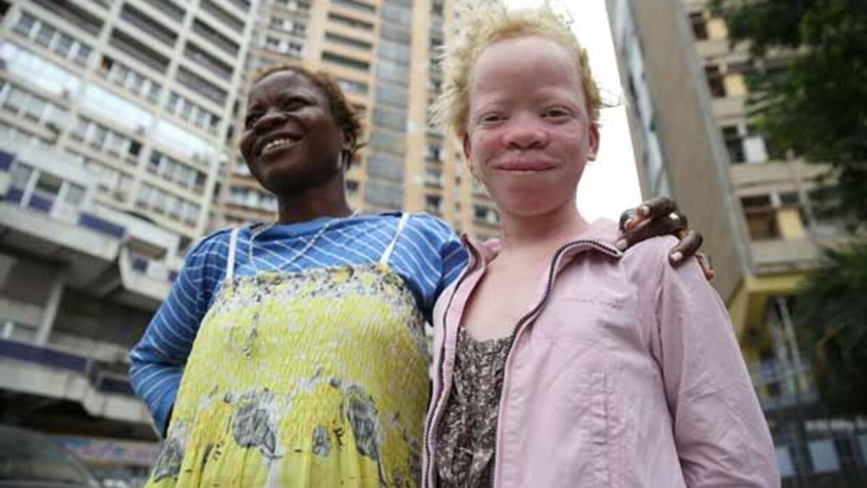 Reportage Afrique - RDC: les albinos atteints du cancer de la peau n'ont pas accès aux soins