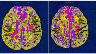 Scanner du cerveau d'un patient atteint de sclérose en plaques.