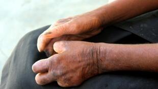 Une personne souffrant de la lèpre à Tulear, dans le sud-ouest de Madagascar.