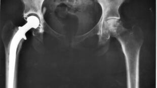 Radiographie d'un implant de hanche.