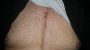 Las cicatrices se pueden tratar, incluso con cirugía.