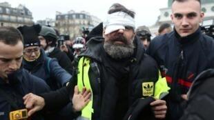 Jerome Rodrigues sendo retirado após ter olho ferido durante manifestação