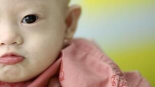 O bebê Gammy, de 7 meses, é portador da Síndrome de Down e nasceu com problemas cardíacos e pulmonares.