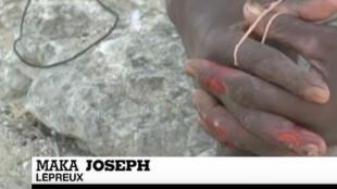 Joseph Maka est atteint de la lèpre à Madagascar (capture d'écran).