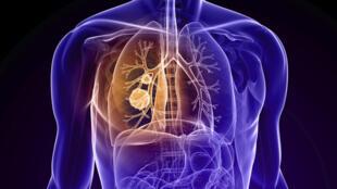 برای شنیدن توضیحات دکتر حامد چیتسازان، متخصص بیماریهای عفونی و اپیدمیولوژی در دانشکده پزشکی بزانسون در فرانسه، بر روی تصویر کلیک کنید.