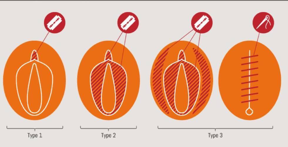 Tipos de mutilación genital femenina.