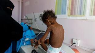 Menina de quase cinco anos, vítima de malnutrição no Iêmen. (22/11/2017)