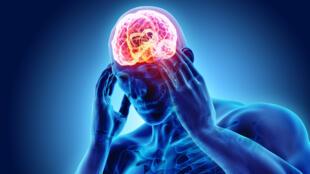 On estime que la migraine touche 10 à 20% de la population adulte.