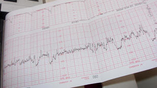 Eletrocardiograma da frequência cardíaca também chamado de ECG.