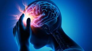 On estime que la migraine touche 10 à 20% de la population adulte