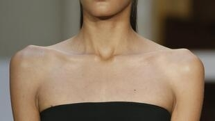 Governo francês quer fechar o cerco contra anorexia no mundo da moda.