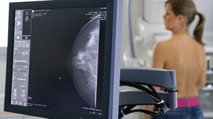 Le traitement permet d'améliorer considérablement le taux de survie des femmes de moins de 60 ans souffrant du type le plus courant de cancer du sein.