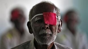 A patient at a hospital in Madurai.