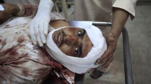 A man injured in the suicide bomb attack in Darra Adam Khel