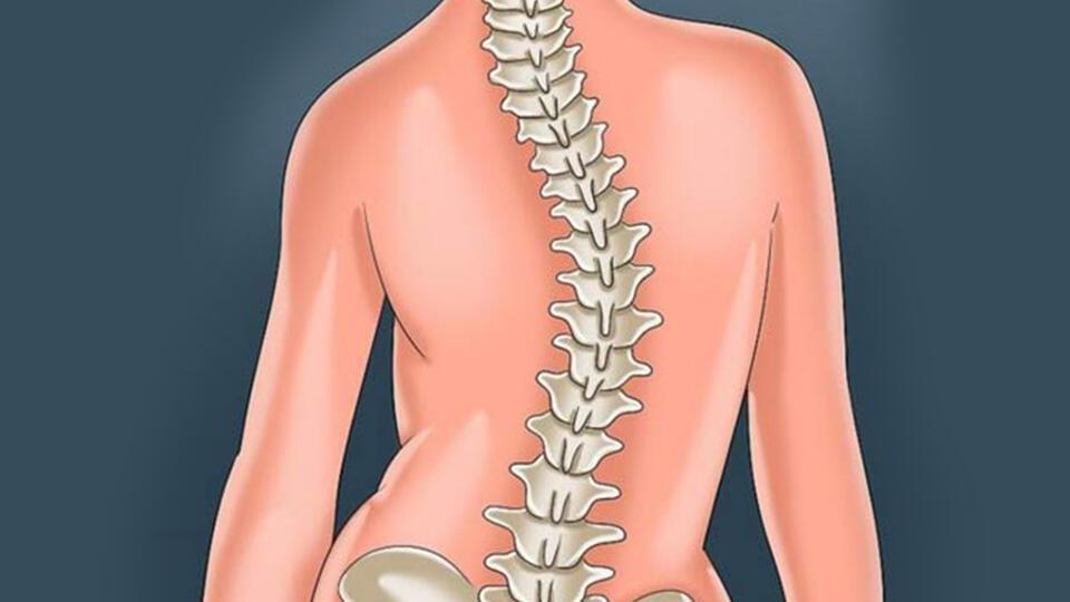اغلب جراحان اورتوپد توافق دارند که در ناهنجاری ۵۰ درجه و بیشتر انجام عمل جراحی لازم است.