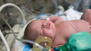 Brasil está entre os 10 países com maior índice de bebês prematuros, segundo OMS.