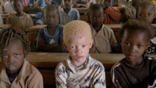 Watu wenye ulemavu wa ngozi,Albino bado wanakabiliwa na hatari kulingana na Shirika la Under The Same Sun