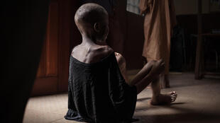 Un enfant victime de malnutrition au Centre pédiatrique de Bangui, le 4 décembre 2018. Plus de 43 000 enfants de moins de cinq ans devraient être confrontés à un risque extrêmement élevé de décès dû à la malnutrition en 2019, selon l'UNICEF.