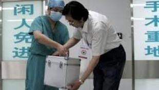 人体器官移植