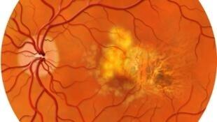 Ở những bệnh nhân mắc chứng thoái hóa điểm vàng, vùng trung tâm thị lực như có đốm đen hay xám