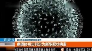 中国媒体刊武汉肺炎病毒病理谱图