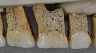 Dentes do Homo Luzonensis.